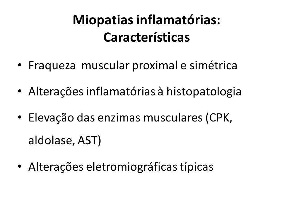 Miopatias inflamatórias: Características Fraqueza muscular proximal e simétrica Alterações inflamatórias à histopatologia Elevação das enzimas muscula