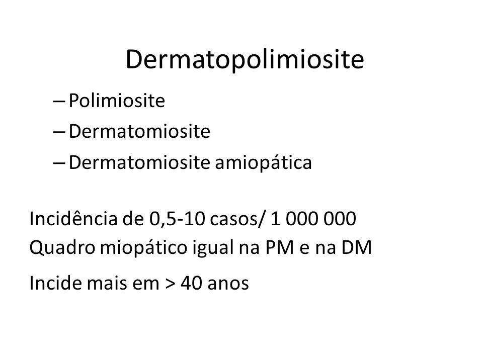 Dermatopolimiosite – Polimiosite – Dermatomiosite – Dermatomiosite amiopática Incidência de 0,5-10 casos/ 1 000 000 Quadro miopático igual na PM e na