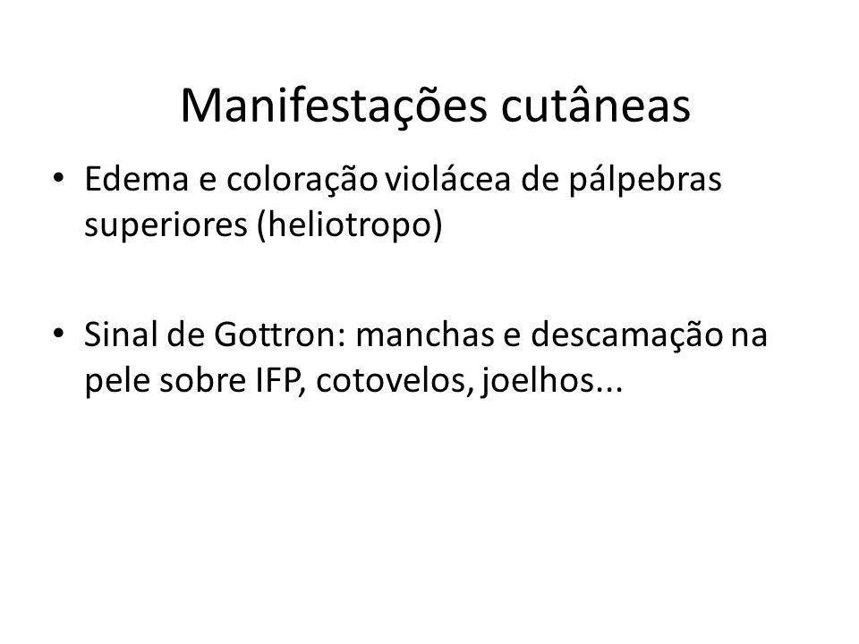 Manifestações cutâneas Edema e coloração violácea de pálpebras superiores (heliotropo) Sinal de Gottron: manchas e descamação na pele sobre IFP, cotov