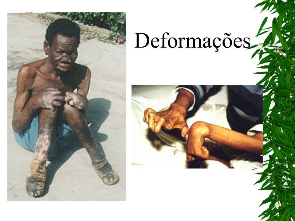 Ulcerações na pele