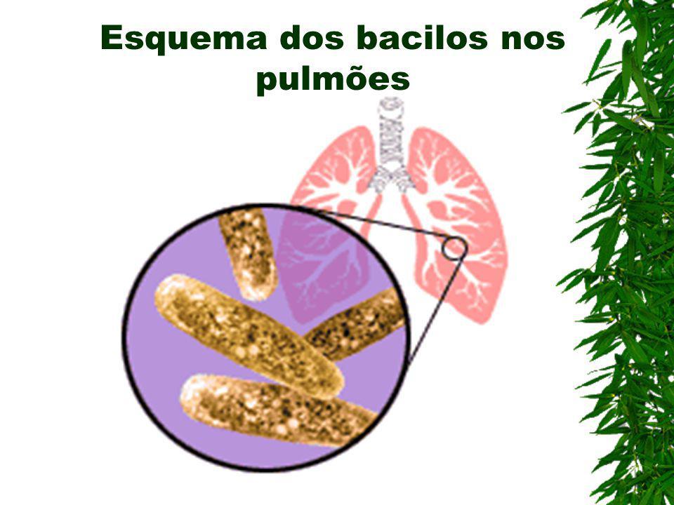 Tuberculose crônica Sintomas graves Necrose do tecido Cavernização no pulmão Agravamento da Fadiga, perda de apetite febre, emagrecimento e etc.