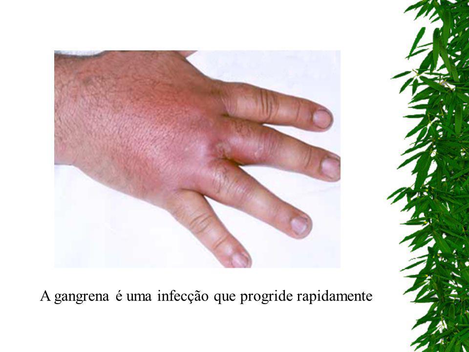 Mionecrose ou edema maligno é o processo de necrose do músculo. É uma infecção que progride rapidamente, destruindo os músculos em razão de sua toxici