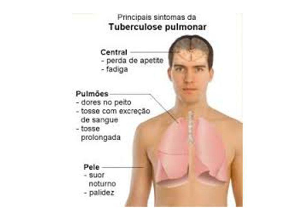 Hanseníase (lepra): transmitida pelo bacilo de Hansen (Mycobacterium lepra), causa lesões na pele, nas mucosas e nos nervos.
