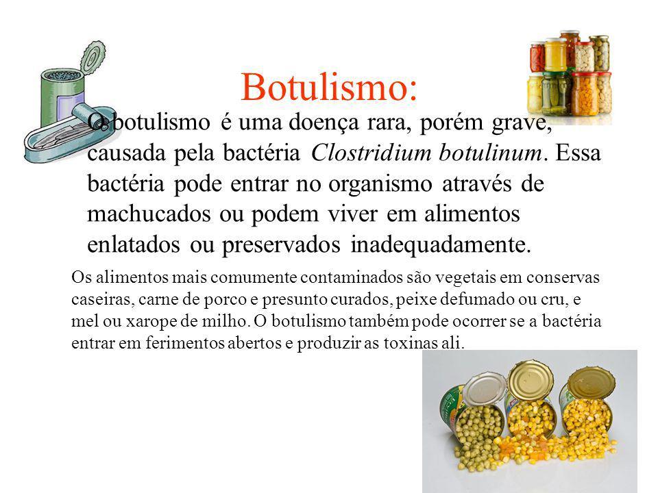 Botulismo: O botulismo é uma doença rara, porém grave, causada pela bactéria Clostridium botulinum. Essa bactéria pode entrar no organismo através de