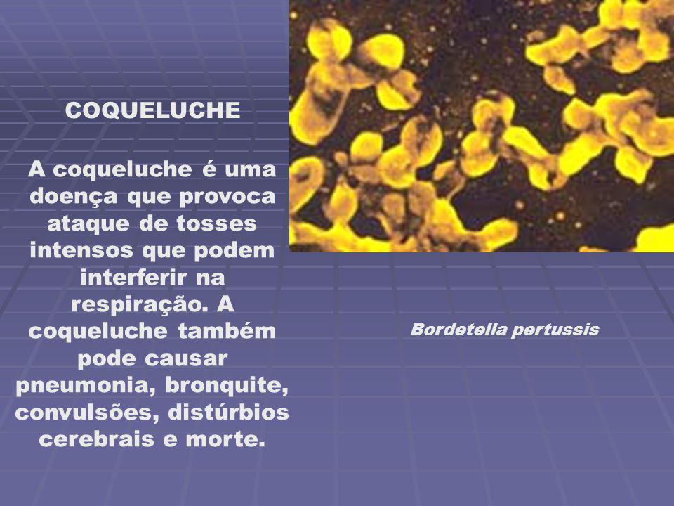 Bordetella pertussis COQUELUCHE A coqueluche é uma doença que provoca ataque de tosses intensos que podem interferir na respiração. A coqueluche també