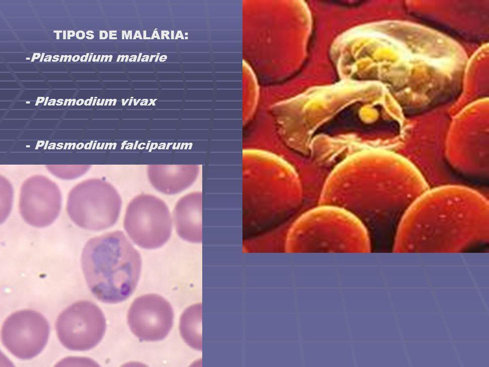 TIPOS DE MALÁRIA: -Plasmodium malarie - Plasmodium vivax - Plasmodium falciparum