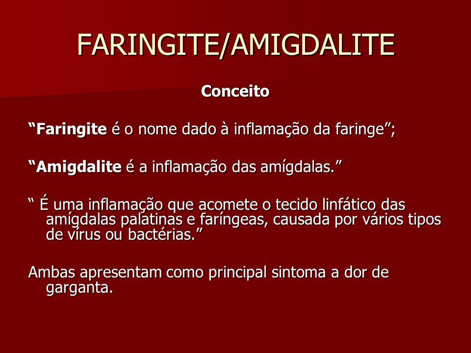 FARINGITE/AMIGDALITE Conceito Faringite é o nome dado à inflamação da faringe; Amigdalite é a inflamação das amígdalas. É uma inflamação que acomete o