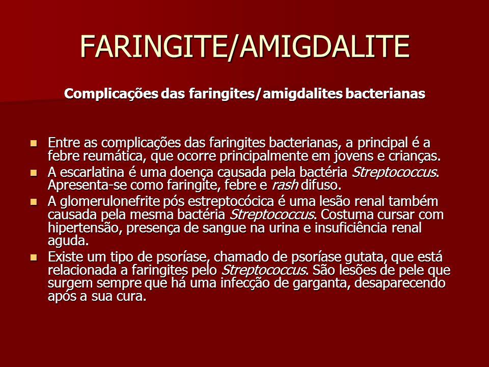 FARINGITE/AMIGDALITE Complicações das faringites/amigdalites bacterianas Entre as complicações das faringites bacterianas, a principal é a febre reumática, que ocorre principalmente em jovens e crianças.