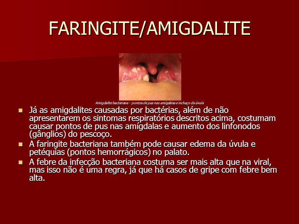 FARINGITE/AMIGDALITE Amigdalite bacteriana - pontos de pus nas amígdalas e inchaço da úvula Já as amigdalites causadas por bactérias, além de não apre