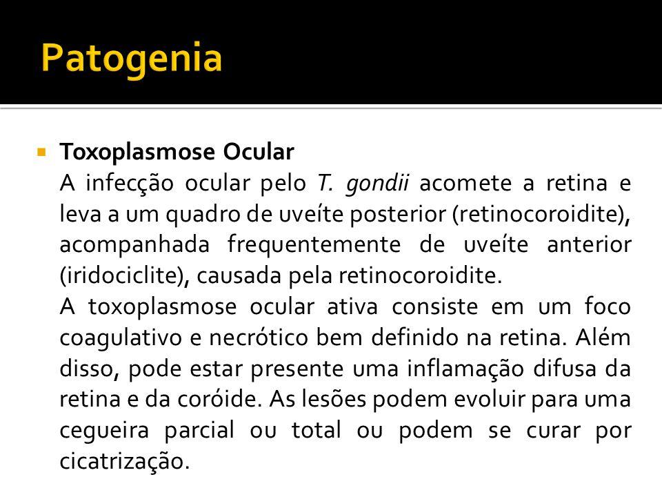 Toxoplasmose Ocular A infecção ocular pelo T.