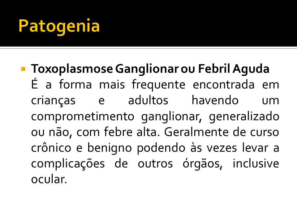 Toxoplasmose Ganglionar ou Febril Aguda É a forma mais frequente encontrada em crianças e adultos havendo um comprometimento ganglionar, generalizado ou não, com febre alta.