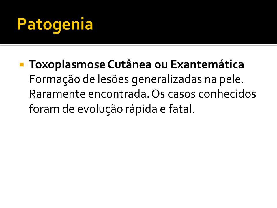 Toxoplasmose Cutânea ou Exantemática Formação de lesões generalizadas na pele.