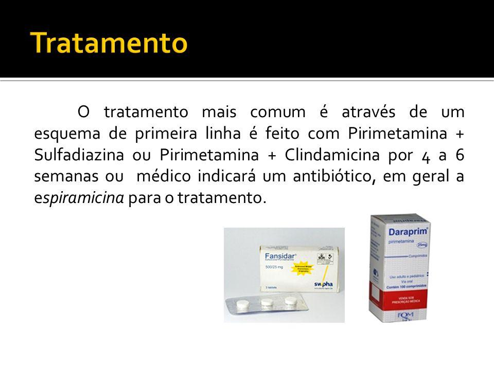 O tratamento mais comum é através de um esquema de primeira linha é feito com Pirimetamina + Sulfadiazina ou Pirimetamina + Clindamicina por 4 a 6 semanas ou médico indicará um antibiótico, em geral a espiramicina para o tratamento.