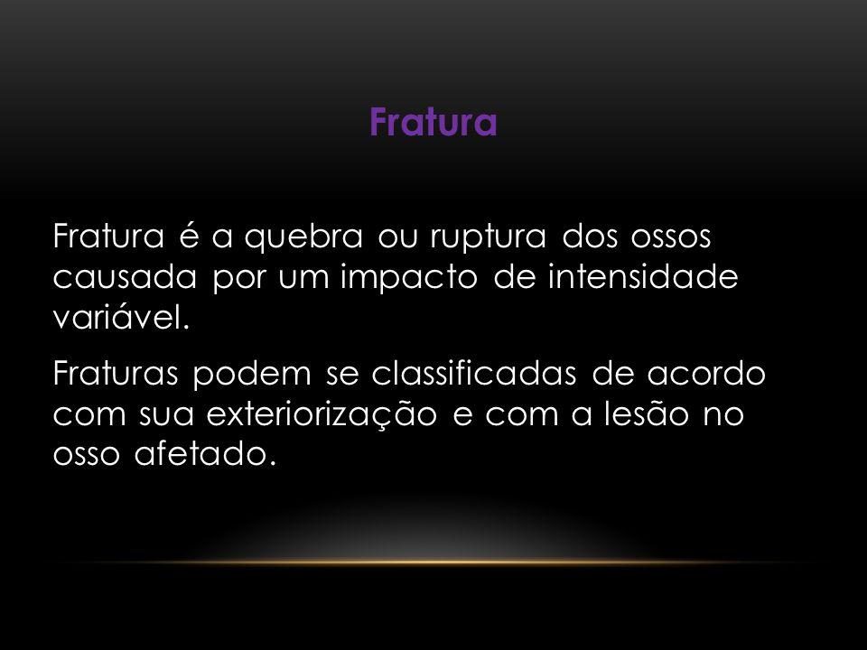 Fratura Fratura é a quebra ou ruptura dos ossos causada por um impacto de intensidade variável. Fraturas podem se classificadas de acordo com sua exte