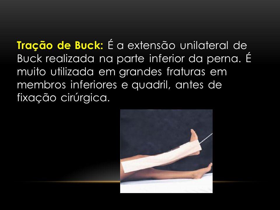 Tração de Buck: É a extensão unilateral de Buck realizada na parte inferior da perna. É muito utilizada em grandes fraturas em membros inferiores e qu