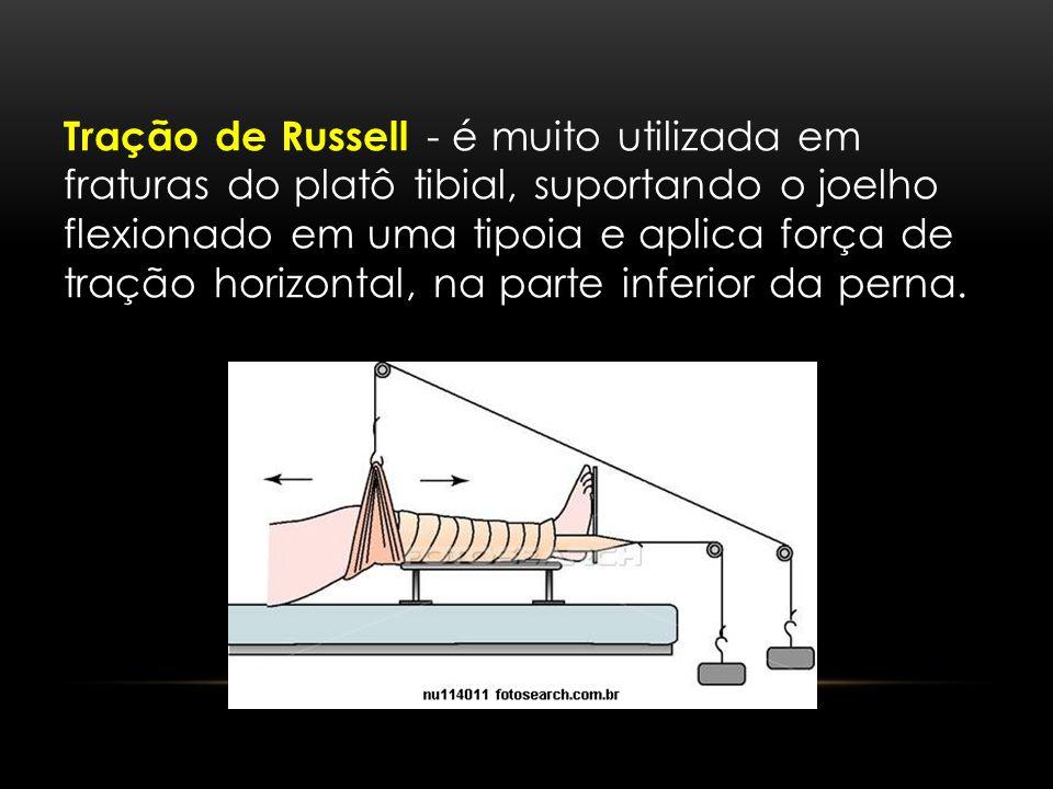 Tração de Russell - é muito utilizada em fraturas do platô tibial, suportando o joelho flexionado em uma tipoia e aplica força de tração horizontal, n