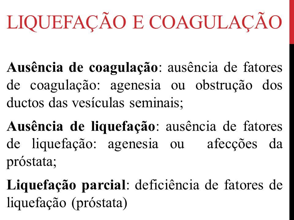 LIQUEFAÇÃO E COAGULAÇÃO Ausência de coagulação: ausência de fatores de coagulação: agenesia ou obstrução dos ductos das vesículas seminais; Ausência de liquefação: ausência de fatores de liquefação: agenesia ou afecções da próstata; Liquefação parcial: deficiência de fatores de liquefação (próstata)