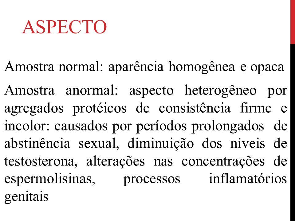 ASPECTO Amostra normal: aparência homogênea e opaca Amostra anormal: aspecto heterogêneo por agregados protéicos de consistência firme e incolor: caus