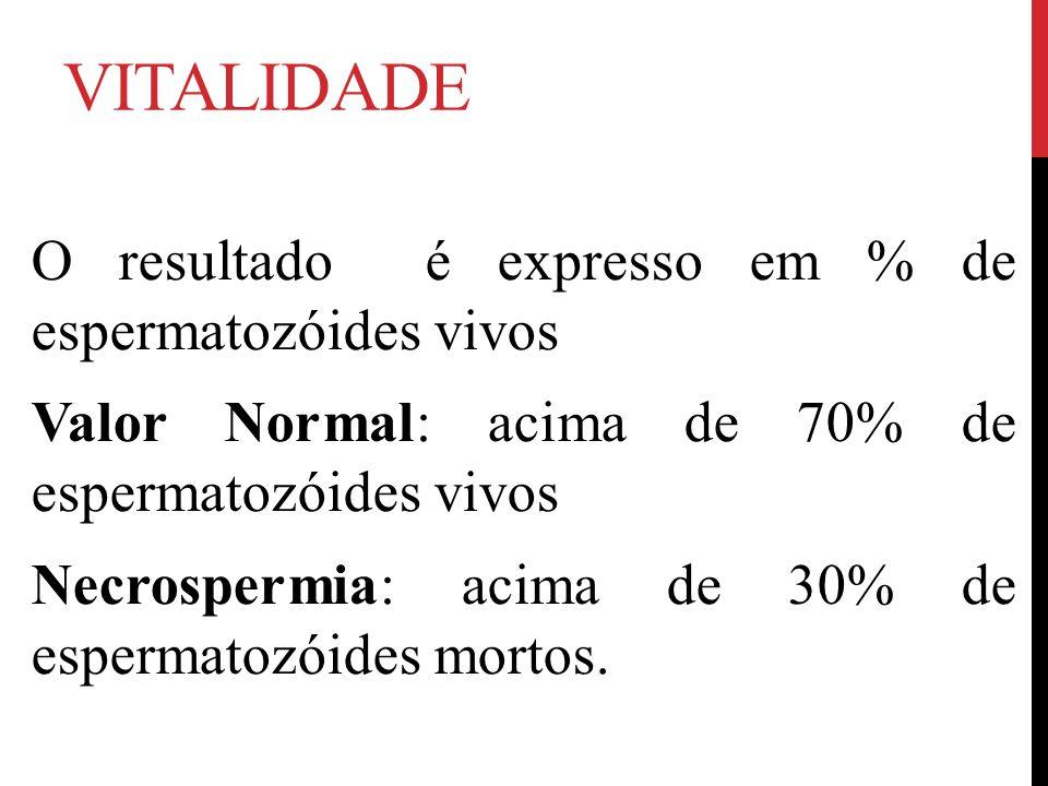 VITALIDADE O resultado é expresso em % de espermatozóides vivos Valor Normal: acima de 70% de espermatozóides vivos Necrospermia: acima de 30% de espermatozóides mortos.