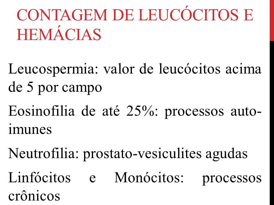 CONTAGEM DE LEUCÓCITOS E HEMÁCIAS Leucospermia: valor de leucócitos acima de 5 por campo Eosinofilia de até 25%: processos auto- imunes Neutrofilia: prostato-vesiculites agudas Linfócitos e Monócitos: processos crônicos