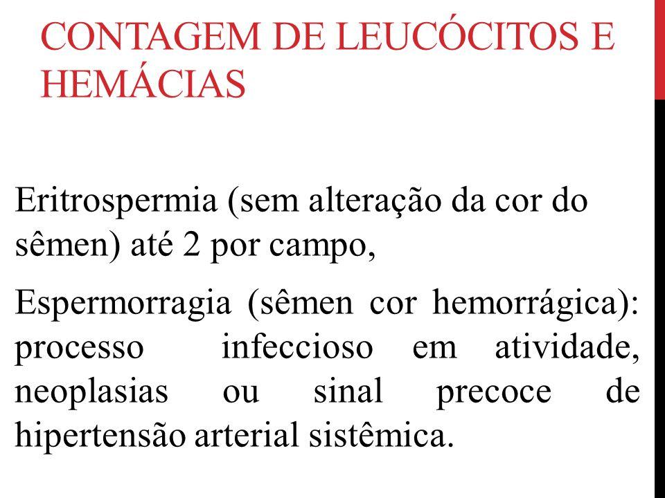 CONTAGEM DE LEUCÓCITOS E HEMÁCIAS Eritrospermia (sem alteração da cor do sêmen) até 2 por campo, Espermorragia (sêmen cor hemorrágica): processo infeccioso em atividade, neoplasias ou sinal precoce de hipertensão arterial sistêmica.