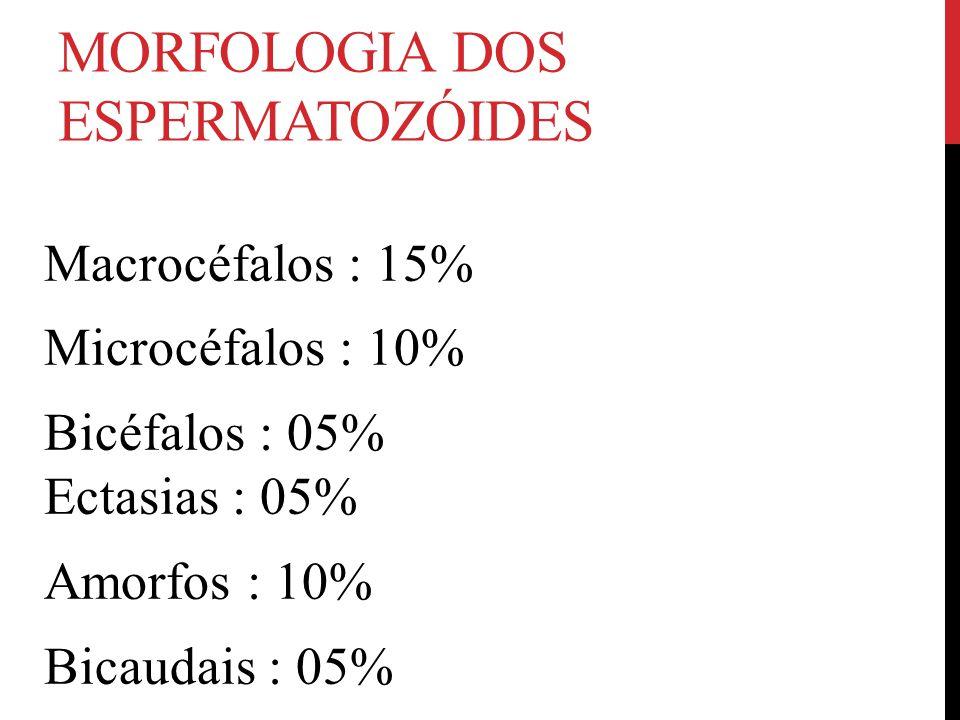 MORFOLOGIA DOS ESPERMATOZÓIDES Macrocéfalos : 15% Microcéfalos : 10% Bicéfalos : 05% Ectasias : 05% Amorfos : 10% Bicaudais : 05%