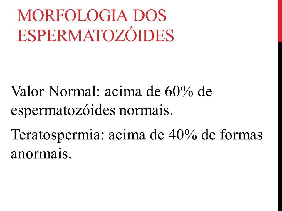 MORFOLOGIA DOS ESPERMATOZÓIDES Valor Normal: acima de 60% de espermatozóides normais. Teratospermia: acima de 40% de formas anormais.
