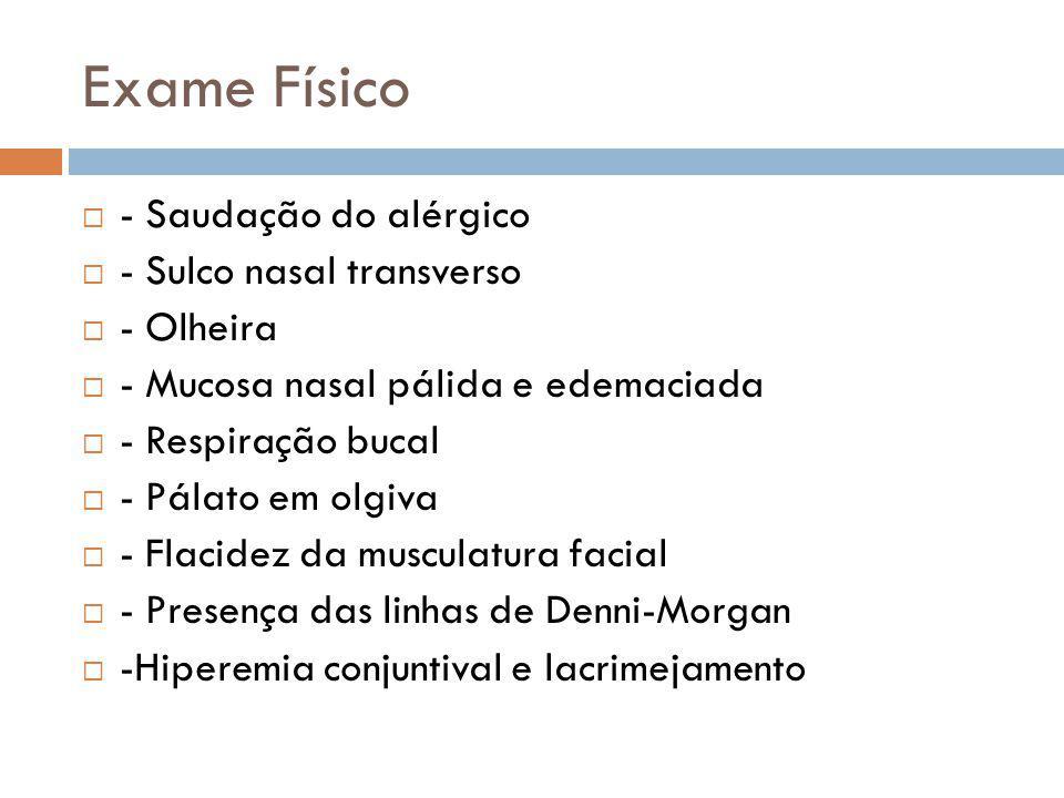 Exame Físico - Saudação do alérgico - Sulco nasal transverso - Olheira - Mucosa nasal pálida e edemaciada - Respiração bucal - Pálato em olgiva - Flac