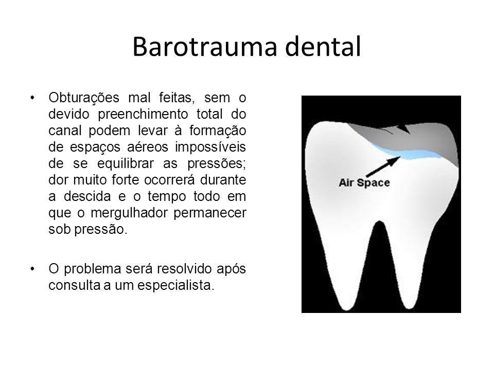 Barotrauma dental Obturações mal feitas, sem o devido preenchimento total do canal podem levar à formação de espaços aéreos impossíveis de se equilibr