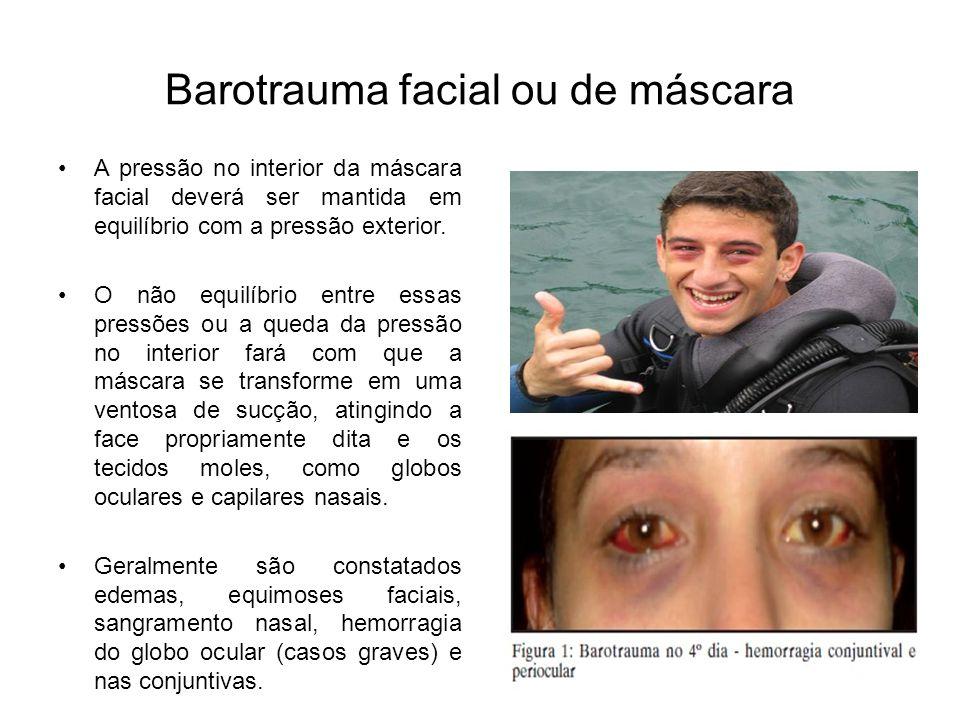 Barotrauma facial ou de máscara A pressão no interior da máscara facial deverá ser mantida em equilíbrio com a pressão exterior. O não equilíbrio entr