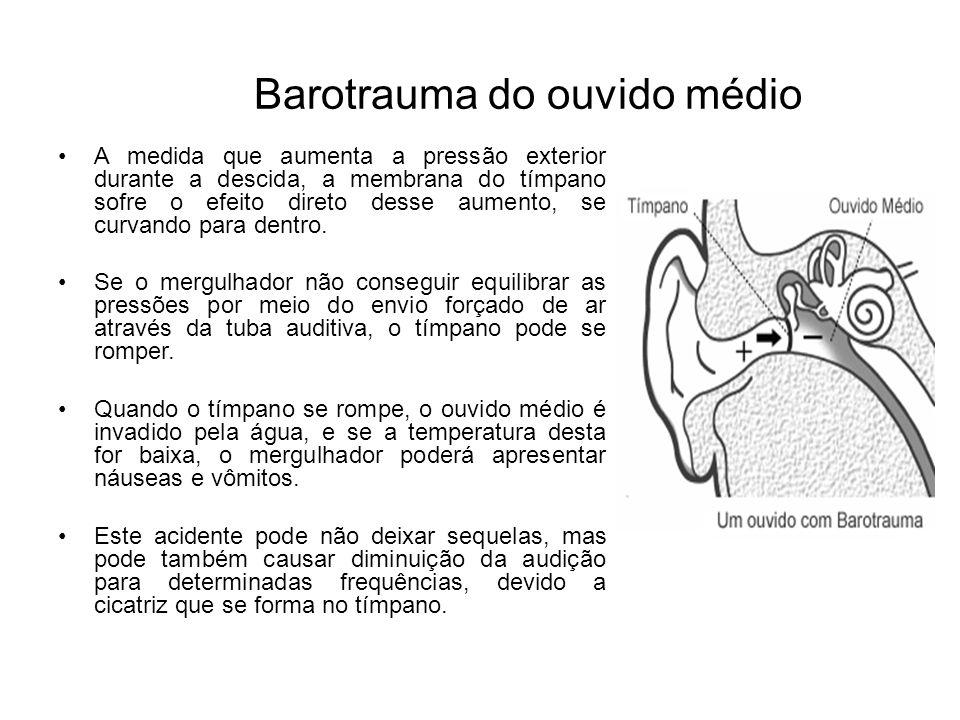 Barotrauma do ouvido externo Ocorre pelo uso de tampões de orelha, rolha de cerumem, ou o uso de gorros de neoprene muito justos, que acabam criando uma câmara fechada no ouvido externo.