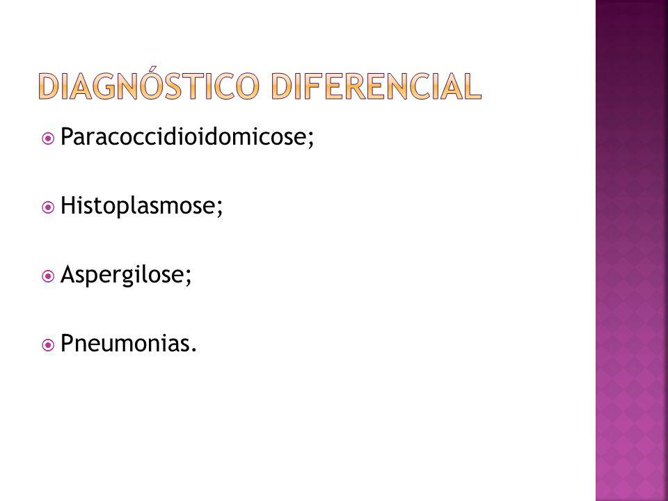 Paracoccidioidomicose; Histoplasmose; Aspergilose; Pneumonias.