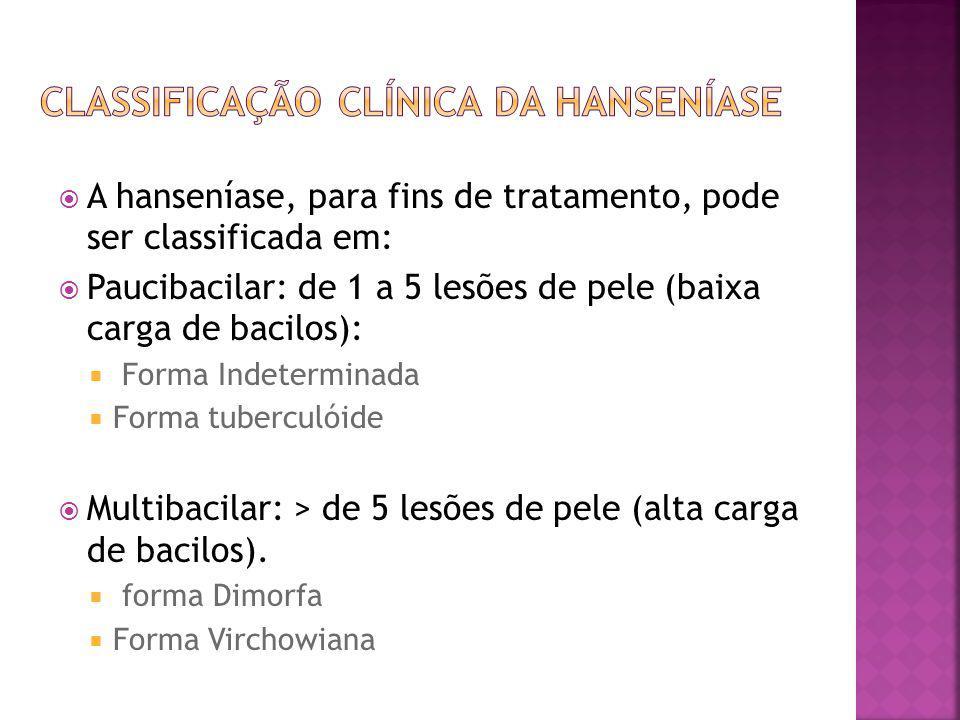 A hanseníase, para fins de tratamento, pode ser classificada em: Paucibacilar: de 1 a 5 lesões de pele (baixa carga de bacilos): Forma Indeterminada F