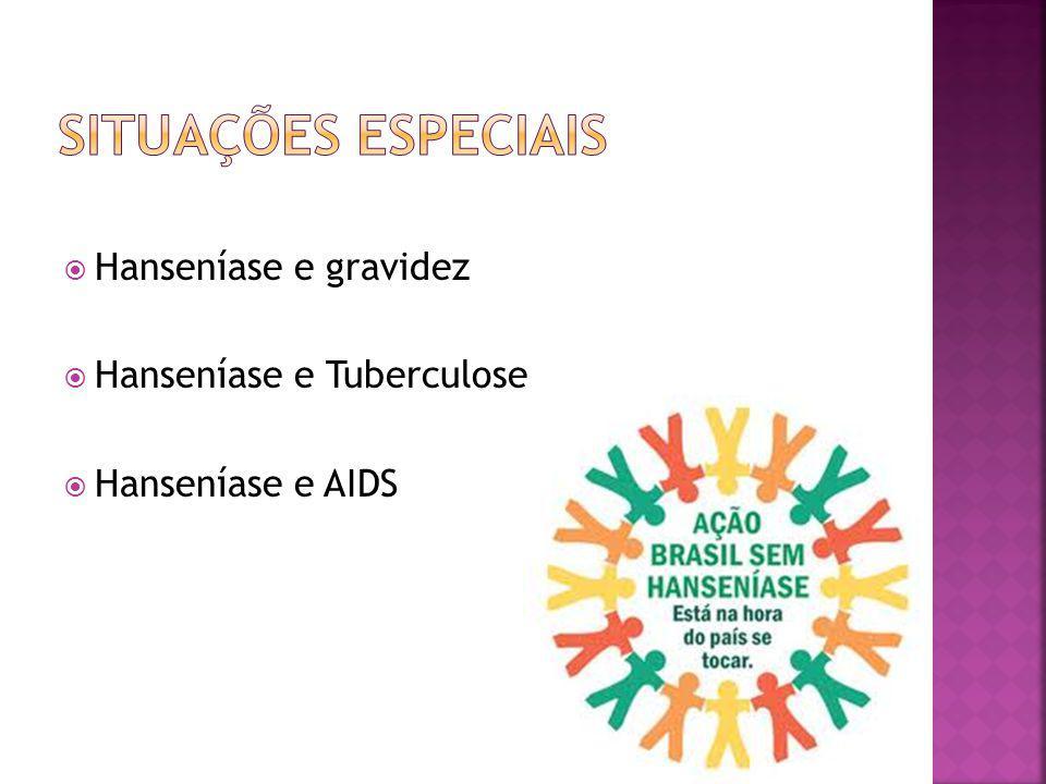 Hanseníase e gravidez Hanseníase e Tuberculose Hanseníase e AIDS