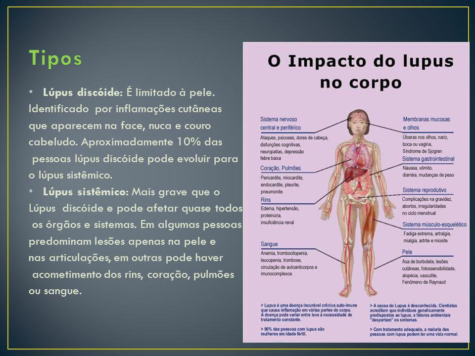 Lúpus discóide: É limitado à pele. Identificado por inflamações cutâneas que aparecem na face, nuca e couro cabeludo. Aproximadamente 10% das pessoas