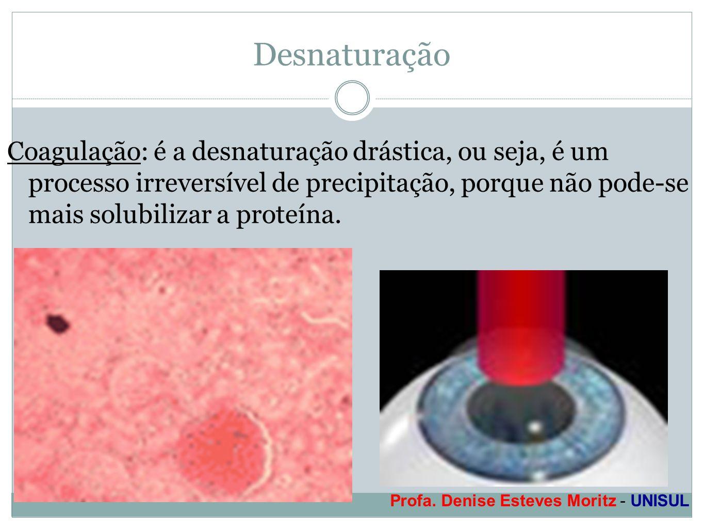 Profa. Denise Esteves Moritz - UNISUL Desnaturação Coagulação: é a desnaturação drástica, ou seja, é um processo irreversível de precipitação, porque