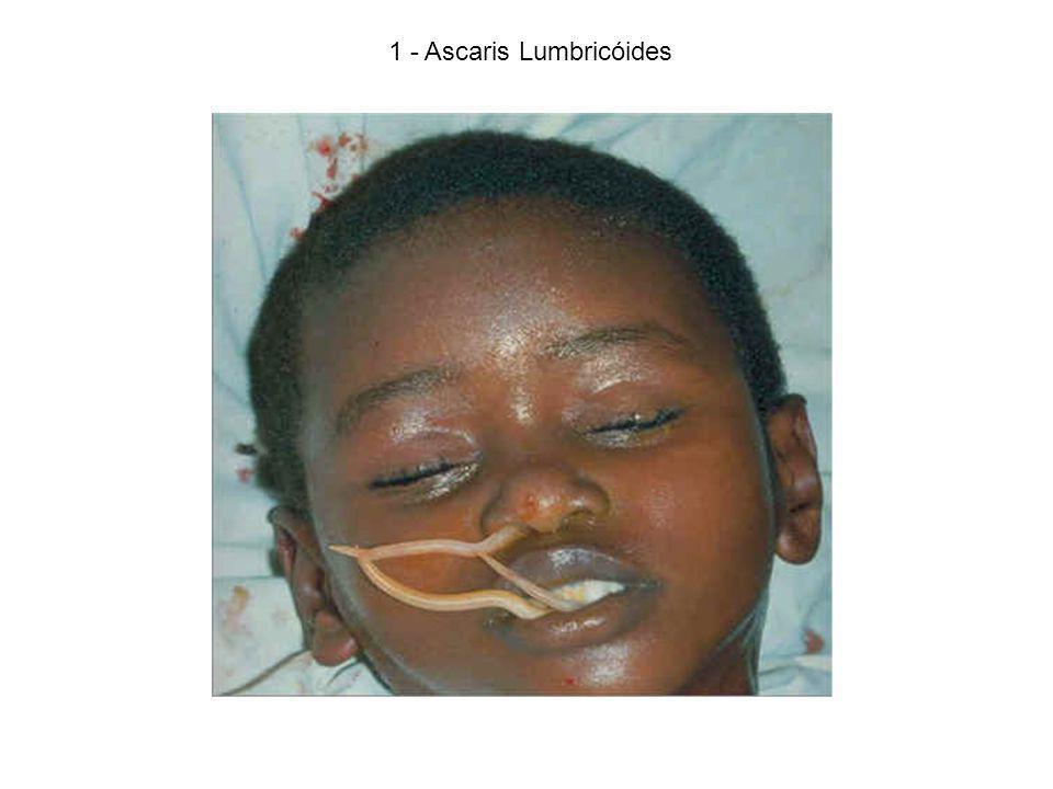 1 - Ascaris Lumbricóides