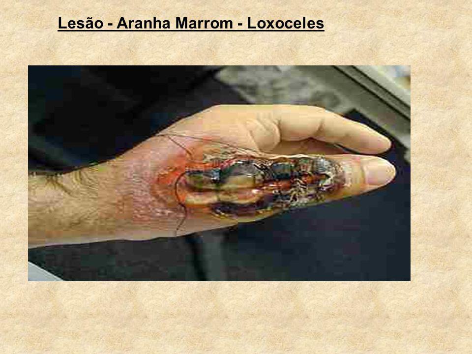 Lesão - Aranha Marrom - Loxoceles
