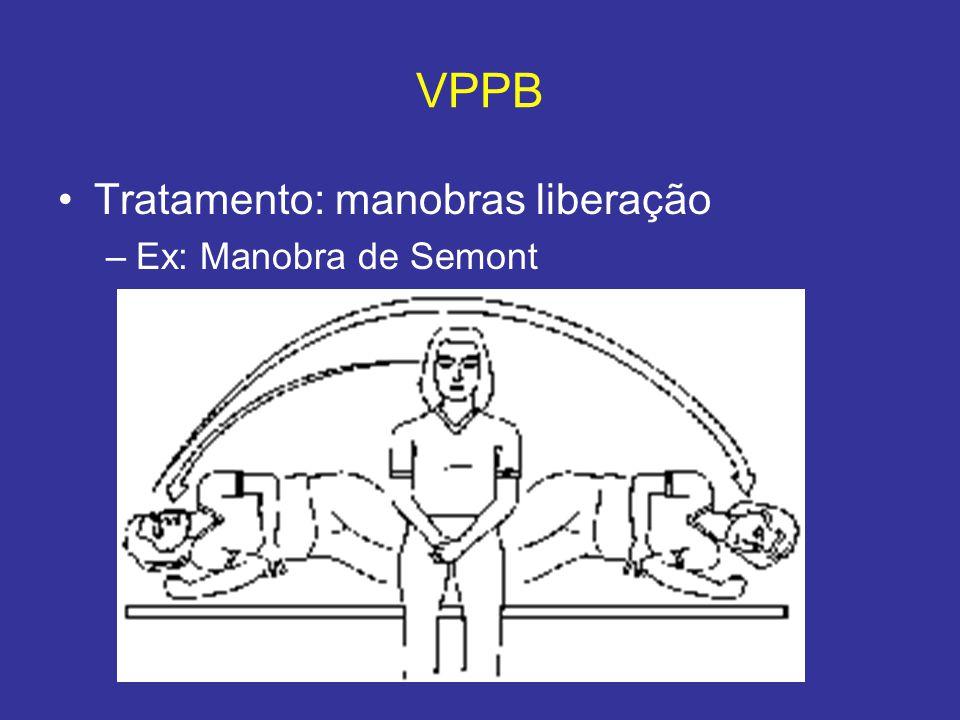 VPPB Tratamento: manobras liberação –Ex: Manobra de Semont