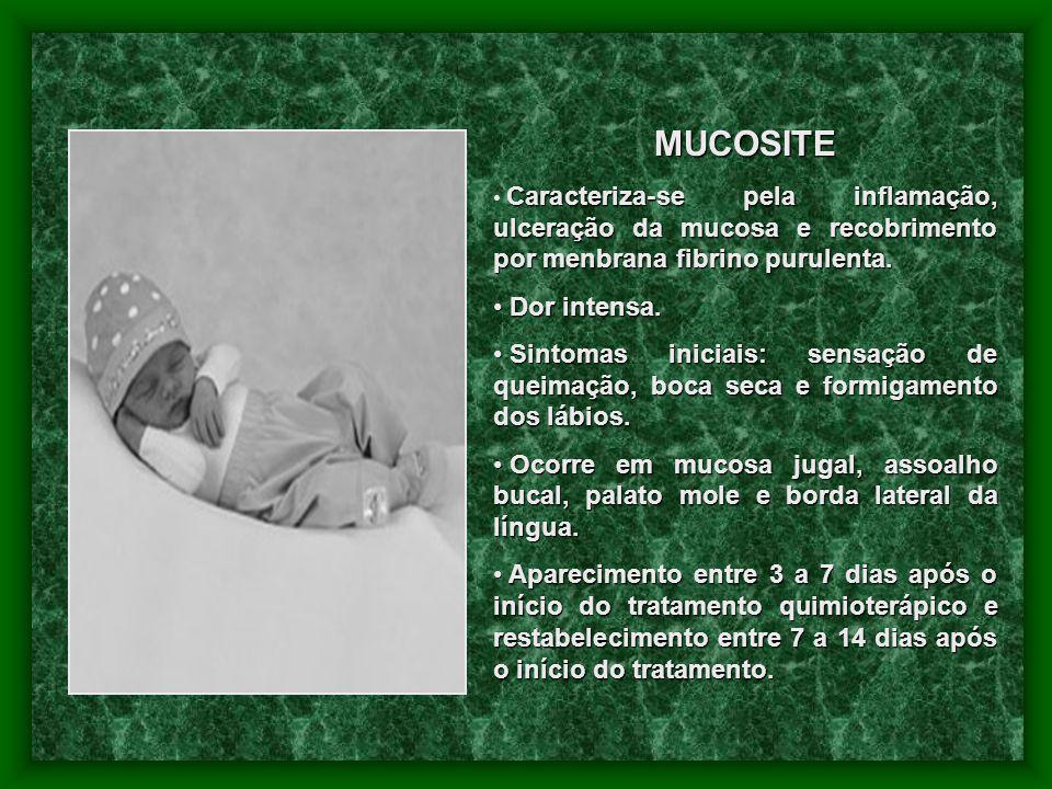 MUCOSITE Caracteriza-se pela inflamação, ulceração da mucosa e recobrimento por menbrana fibrino purulenta. Dor intensa. Dor intensa. Sintomas iniciai