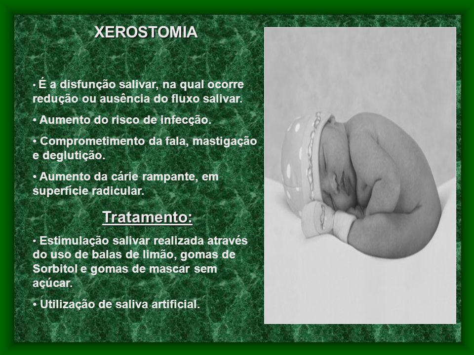 XEROSTOMIA É a disfunção salivar, na qual ocorre redução ou ausência do fluxo salivar. Aumento do risco de infecção. Comprometimento da fala, mastigaç