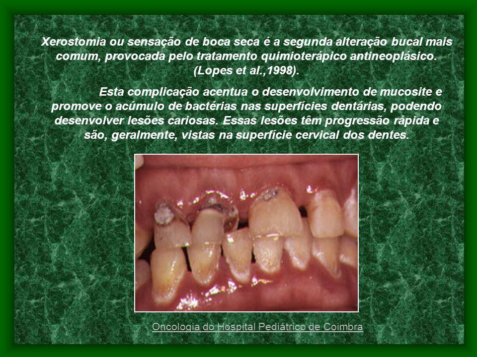 Xerostomia ou sensação de boca seca é a segunda alteração bucal mais comum, provocada pelo tratamento quimioterápico antineoplásico. (Lopes et al.,199