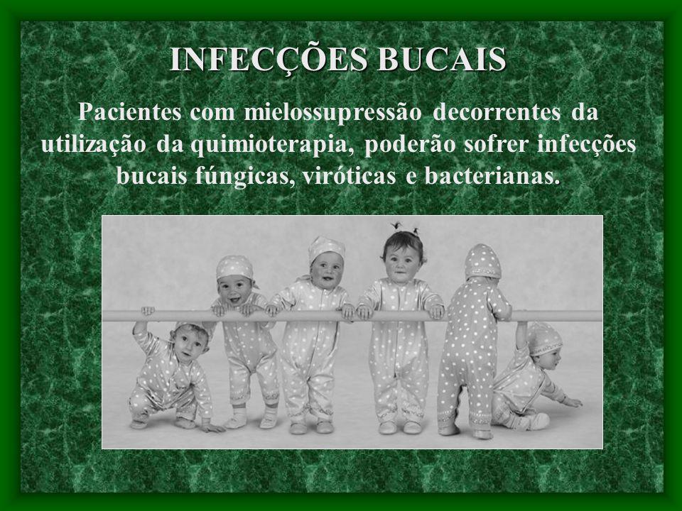 INFECÇÕES BUCAIS.
