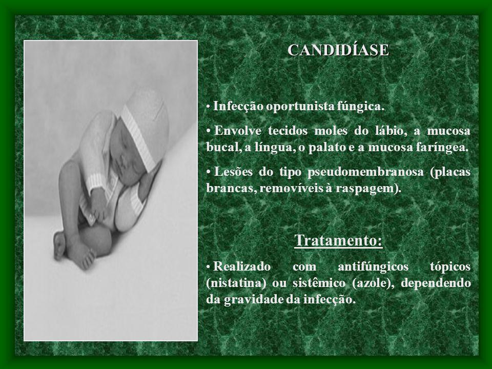 CANDIDÍASE Infecção oportunista fúngica. Envolve tecidos moles do lábio, a mucosa bucal, a língua, o palato e a mucosa faríngea. Lesões do tipo pseudo