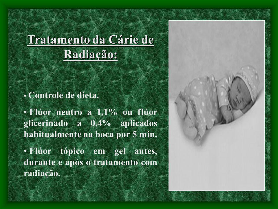 Tratamento da Cárie de Radiação: Controle de dieta. Flúor neutro a 1,1% ou flúor glicerinado a 0,4% aplicados habitualmente na boca por 5 min. Flúor t