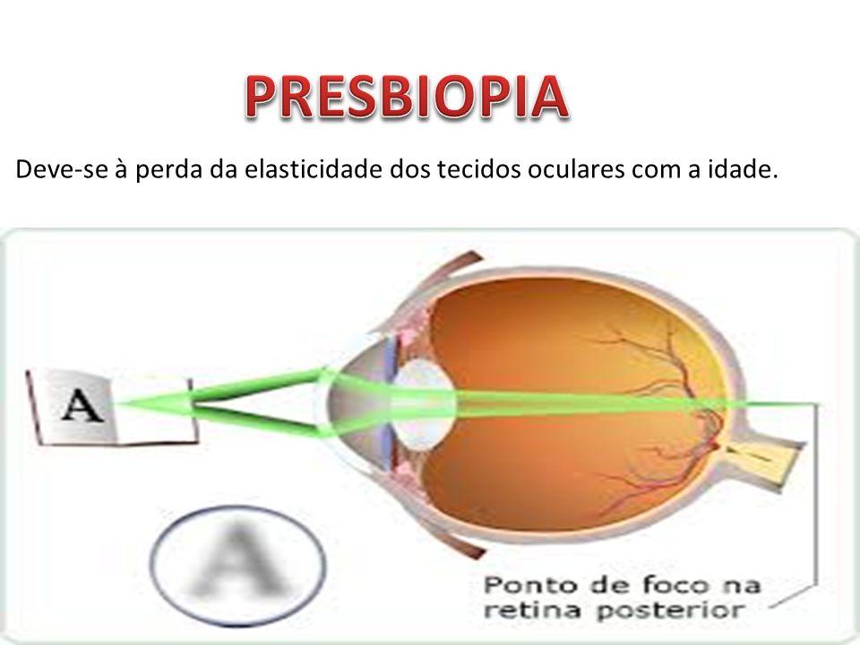 Deve-se à perda da elasticidade dos tecidos oculares com a idade.