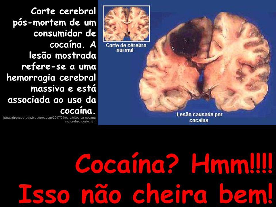 Cocaína? Hmm!!!! Isso não cheira bem! Corte cerebral pós-mortem de um consumidor de cocaína. A lesão mostrada refere-se a uma hemorragia cerebral mass