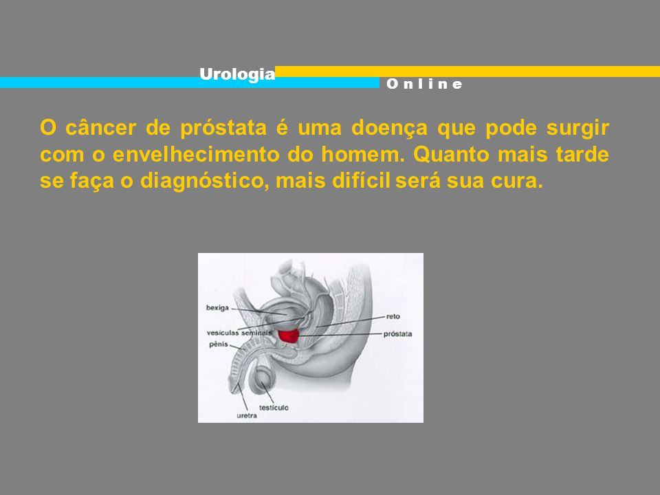 O câncer de próstata é uma doença que pode surgir com o envelhecimento do homem.