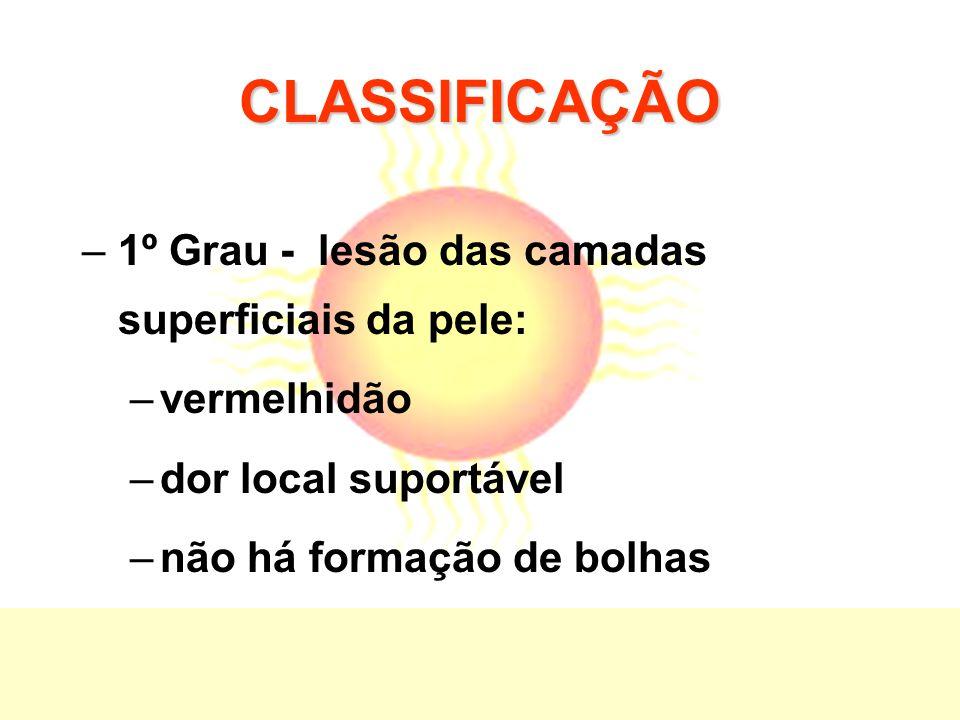 CLASSIFICAÇÃO –1º Grau - lesão das camadas superficiais da pele: –vermelhidão –dor local suportável –não há formação de bolhas