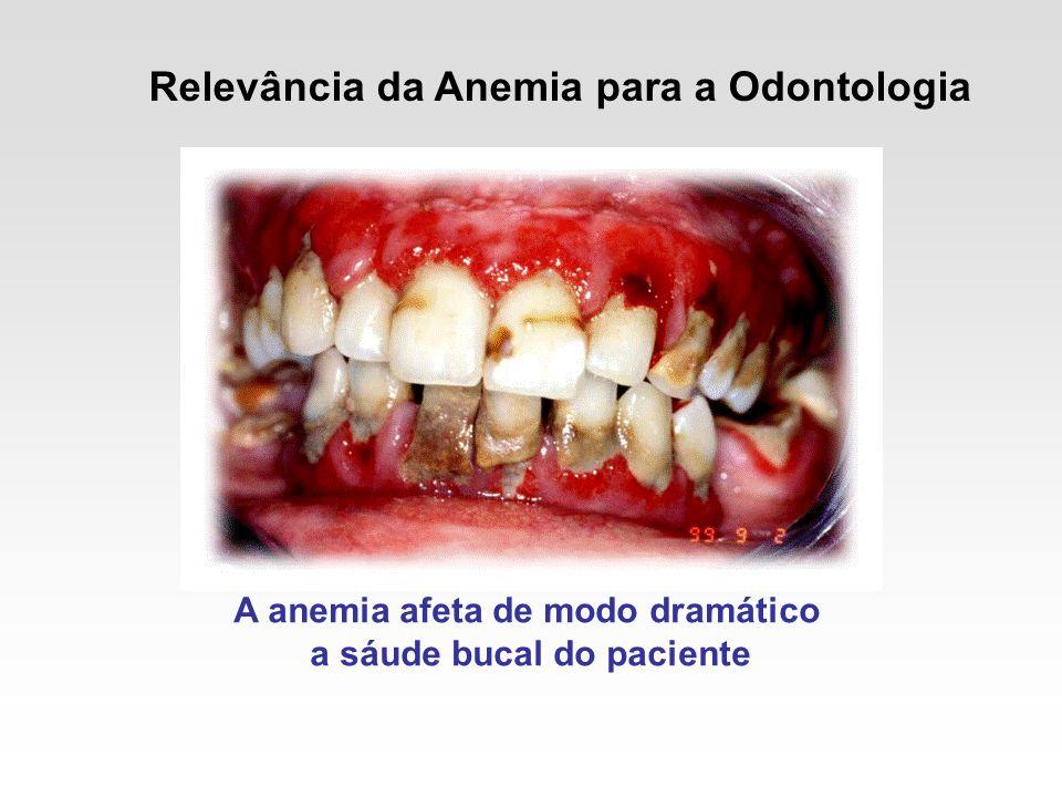 Relevância da Anemia para a Odontologia A anemia afeta de modo dramático a sáude bucal do paciente